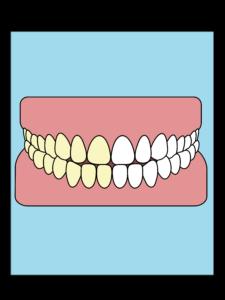 Tandblegning Tandklinik Vestergade
